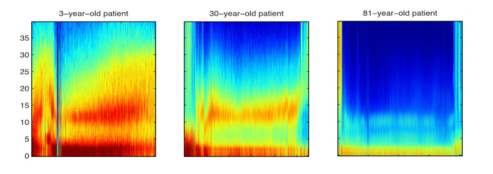 Image of scans of brain waves.
