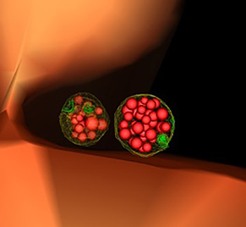 """Yeast cell showing two mature, or """"late"""" endosomes that are filled with small vesicles."""