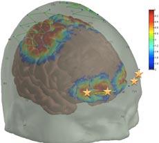 Pain responses the prefrontal cortex