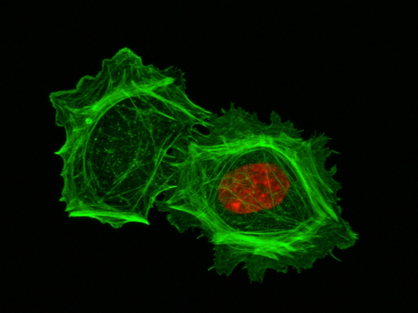 A closeup of two human cells with the cells dyed green and the necleaus dyed red.
