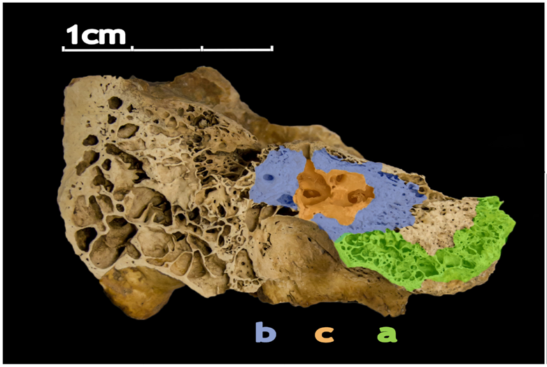 A macro image of the petrous bone. 3 sections are color coded A (green), B (blue), and C (red)