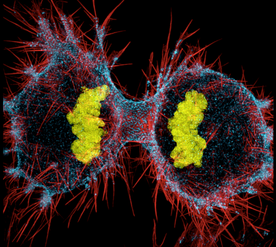 A human HeLa cell dividing. Each section has red, stringlike projections. The dividing cell is dotted in light blue, and the two centers of the dividing cell contain yellow clumps.