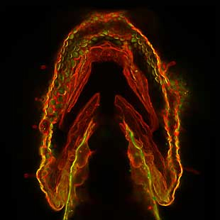 A spade-shaped group of cells glowing red, yellow, and green.