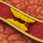Artery with fat deposits and a formed clot. Credit: Stock image.