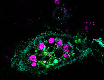 A healthy cell that has ingested dying cells.